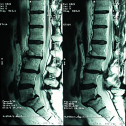 MRI showing Spondylolisthesis